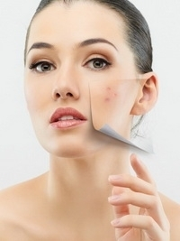 Best Products for Cystic Acne Treatment