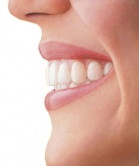 Tips to Get Rid of Tooth Stains