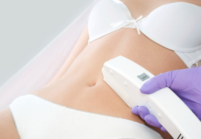 How Permanent Is Laser Hair Removal?