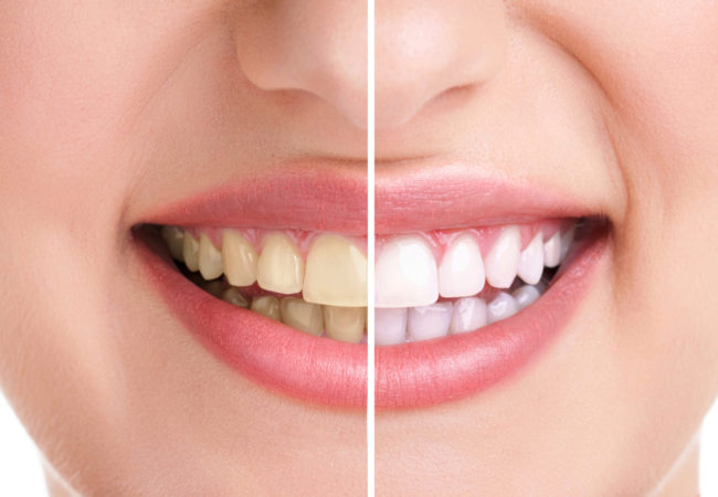 How to Get White Teeth Naturally – Do's and Don'ts
