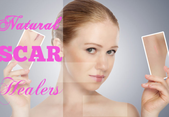 8 Great Natural Scar Healers