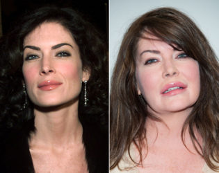 Lara Flynn Boyle Before Plastic Surgery
