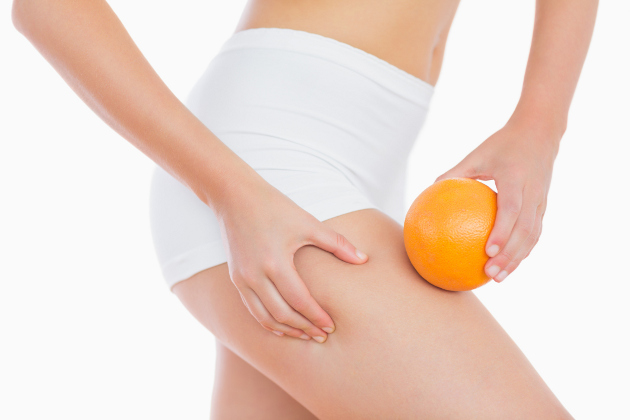 4 Busted Myths About Cellulite