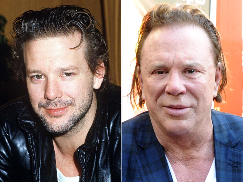 Mickey Rourke Before Plastic Surgery