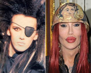 Pete Burns Before Plastic Surgery