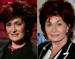 Sharon Osbourne Before Plastic Surgery