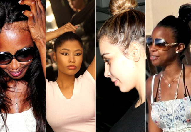 Celebrities Without Weaves