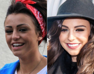 Cher Lloyd Veneers Before And After