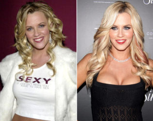 Jenny Mccarthy Breasts Before And After