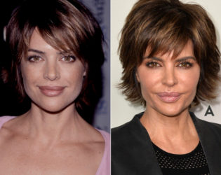 Lisa Rinna Lips Before And After