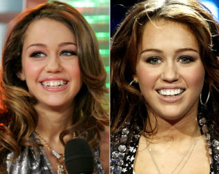Miley Cyrus Veneers Before And After