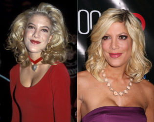 Tori Spelling Before And After