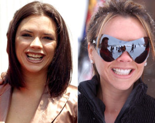 Victoria Beckham Veneers Before And After