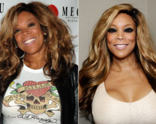 Wendy Williams Breast Implants Before And After