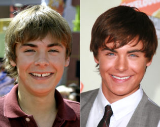 Zac Efron Veneers Before And After