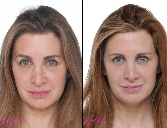 Collagen Treatment Before After