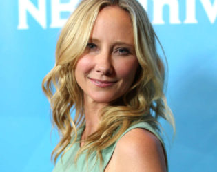 Anne Heche Herpes