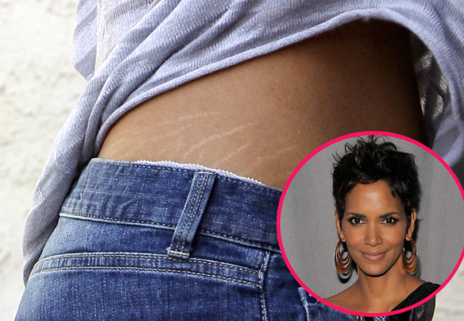 Celebrities Get Stretch Marks Too!