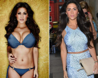 Casey Batchelor Breast Reduction Surgery