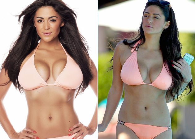 Celebrities Who've Had Breast Reductions