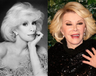 Joan Rivers After Plastic Surgery