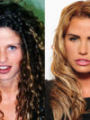 Katie Price After Plastic Surgery