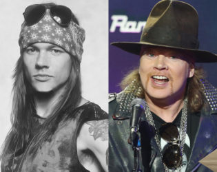 Axl Rose After Plastic Surgery