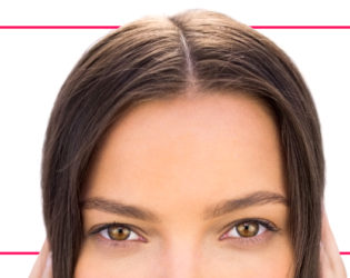 10 Fixes for a Receding Hairline