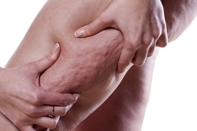 10 Things That Make Cellulite Worse