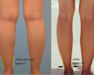 Cankle Reduction Liposuction