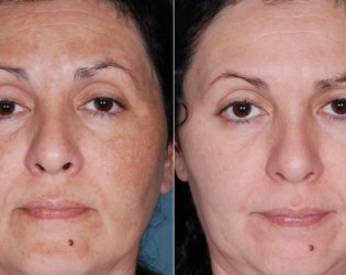 Chemical Peel Results