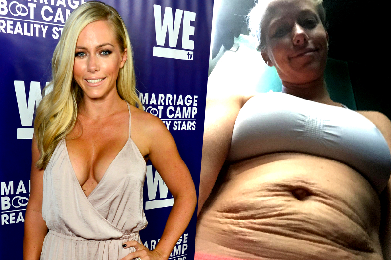 Real Celebrity Post Baby Bodies